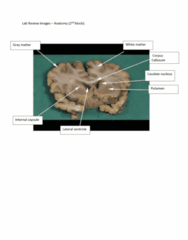 ANAT 1010 Study Guide - Midterm Guide: Corpus Callosum, Caudate Nucleus, Internal Capsule